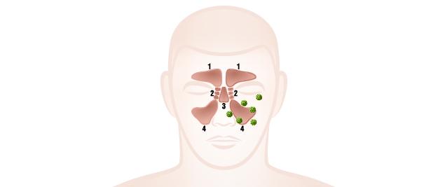 副鼻腔内に細菌が感染