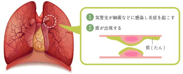 痰 が 絡む 咳 コロナ あなたの痰は、本当に「痰」?医師が教える原因と治療など痰の全知識