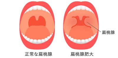 扁桃炎の図