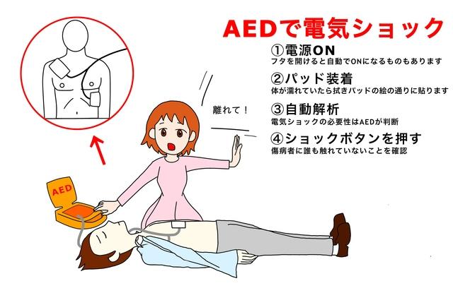 AEDで電気ショック