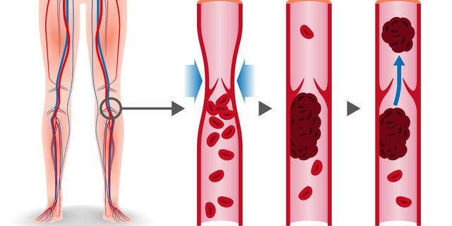 血管に血栓ができる