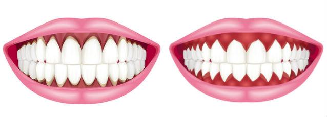 不健康な歯茎