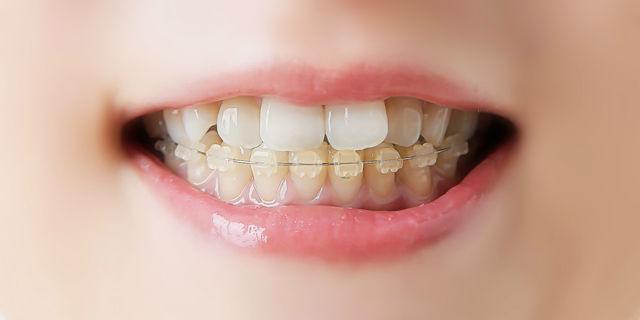 【歯列矯正中】噛めなくてもおいしく食べられる食 …