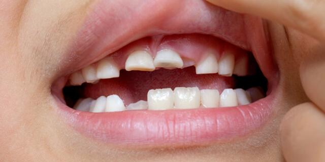 欠けたままの歯