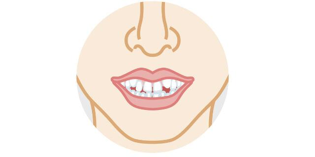 歯並びが悪い女性