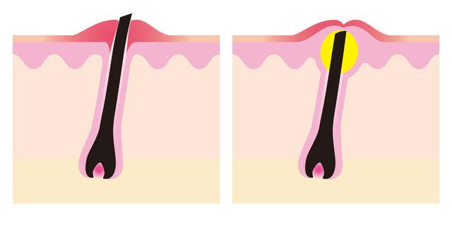 毛根がニキビや炎症を起こしている