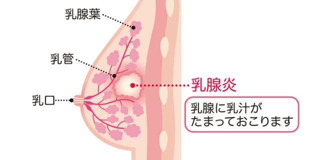乳腺炎の解説