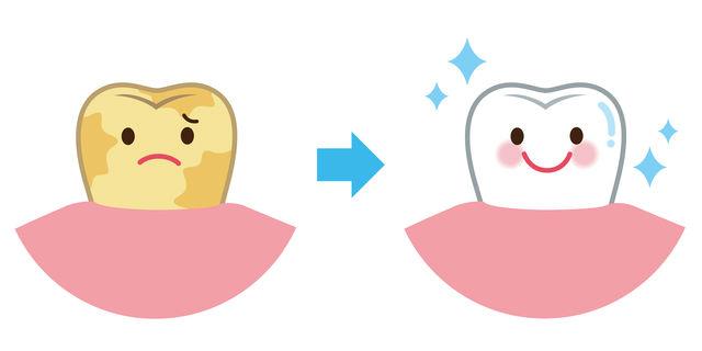 歯垢の除去