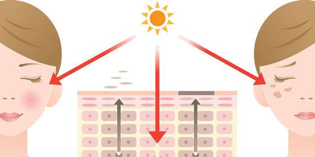 紫外線でシミが出来るメカニズム