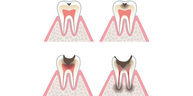 エナメル質が溶けた虫歯