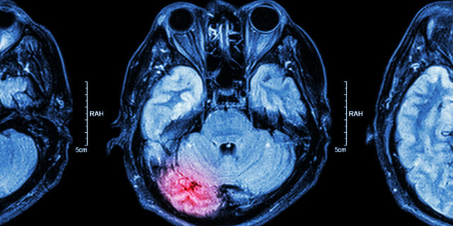 脳の後遺症