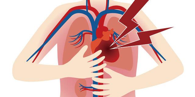 大動脈が裂ける