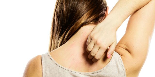 """ストレスで発症?バラ色の発疹が特徴の""""ジベルバラ色粃糠疹""""とは"""