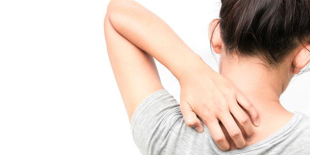 体を掻く女性