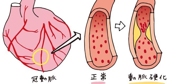 動脈硬化の仕組み