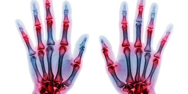 手指の関節の痛み