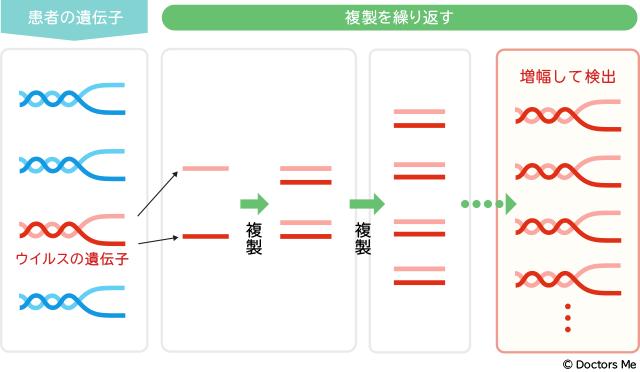 【新型コロナ】PCR検査の流れ