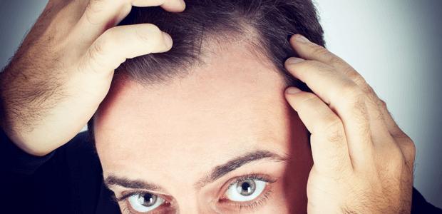 じつは頭皮にも老化現象が! 正しいケアでアンチエイジング