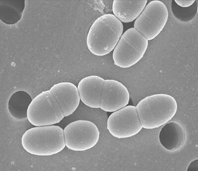乳酸菌ラクトコッカス20-92の電子顕微鏡写真