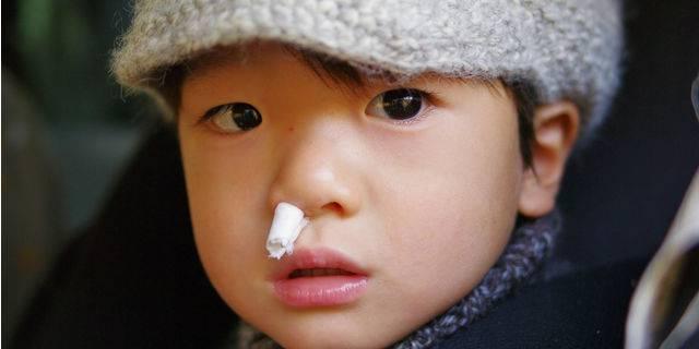 鼻血 が よく 出る 原因
