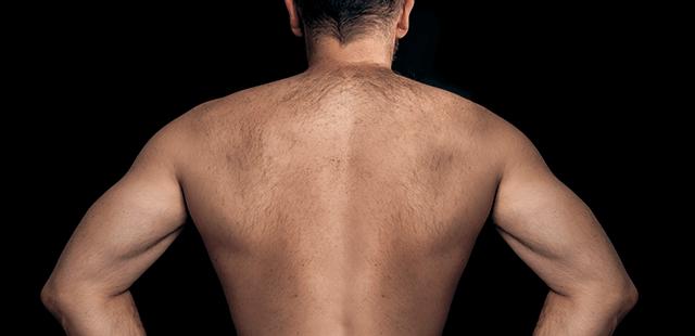 日焼けが原因?H・ジャックマン、3度の皮膚がん治療。「皮膚 ...