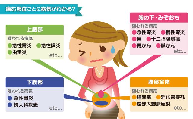 腹痛の原因イラスト
